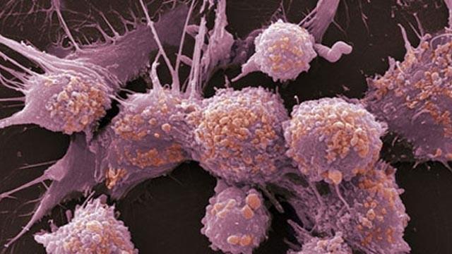 作息不规律 癌症找上门