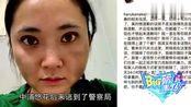 BIG蒋劲夫女友被曝打掉两颗牙齿东京警视厅对蒋劲夫发逮捕令